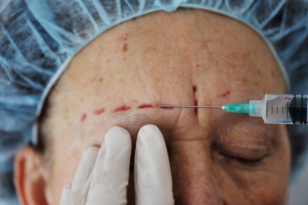Cure of facial paralysis